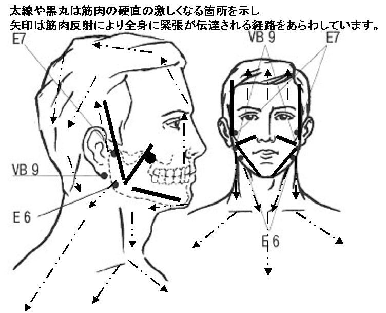 噛み合わせ、顎関節症と顔面筋の緊張と全身への波及