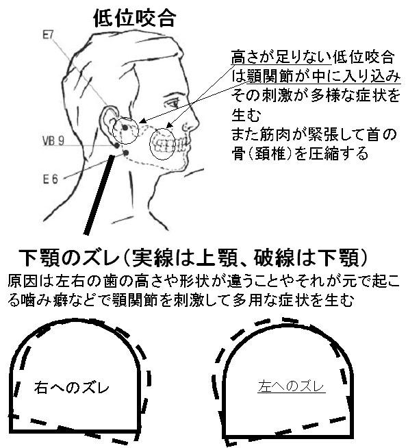 低位咬合と額偏移
